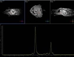 Non-invasive imaging of fat tissue in live animals